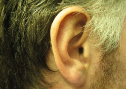 appareil-auditif-invisible